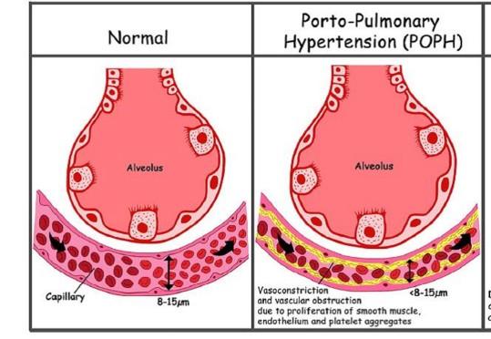 Hypertension porto-pulmonaire