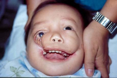 Not trust facial hemi spasticity excited
