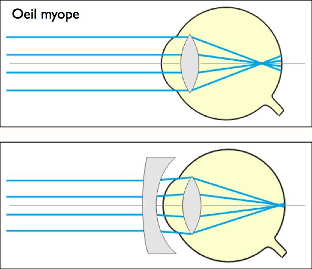 cf3f13e9304650 myope  f trop petit (PR   ∞)     correction lentille divergente · voir